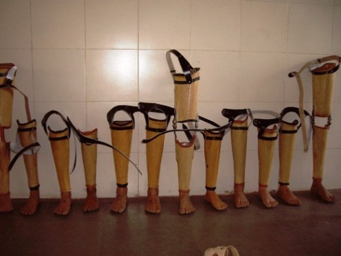 Jaipur Foot leg prosthetics