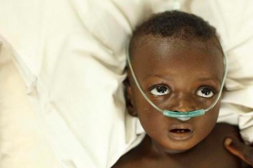 Ghana child with pneumonia