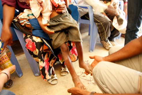 Boy checked for malnutrition at Congo hospital