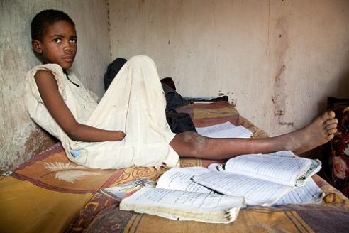 Darfur child victim of a landmine