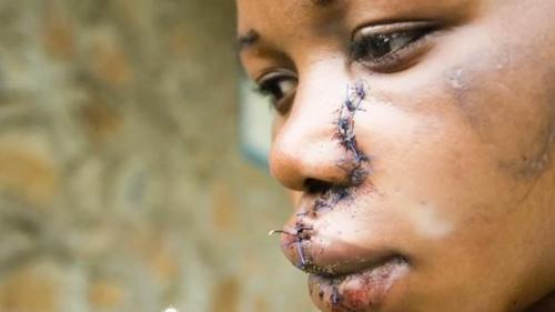 East Congo woman with face injury