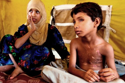Yemini boy and sister with landmine injuries