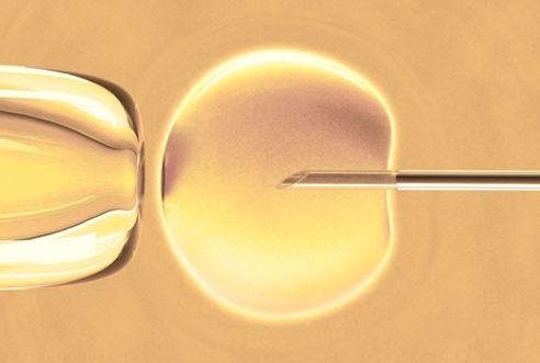 IVF - In Vitro Fertilization