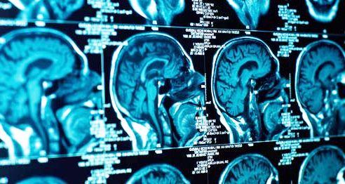 Brain imaging scans