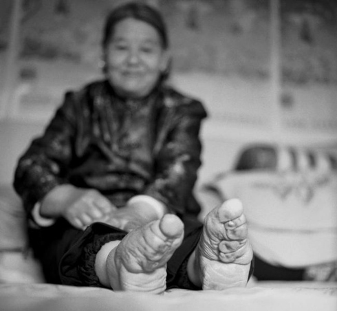 Chinese women who were subjected to the extremely painful practice, also known as lotus feet,