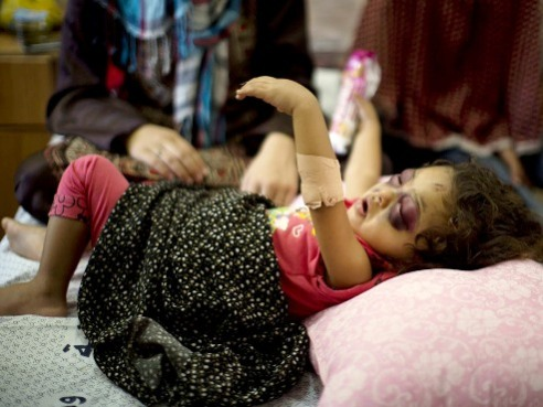 Two-year-old palestinian girl injured by bombing