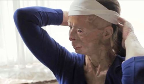 With a different kind of beauty, acid survivor Patricia LaFranc shows her injuries.